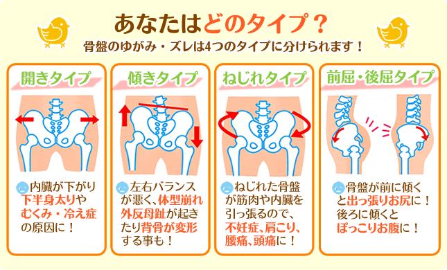 あなたはどのタイプ?骨盤のゆがみ・ズレは4タイプに分けられます!